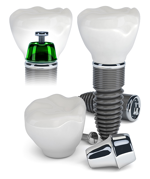 Dental Implants near Noe Valley
