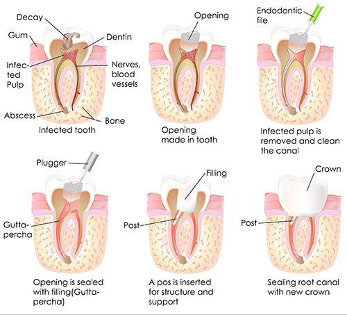 Root Canal in The Castro