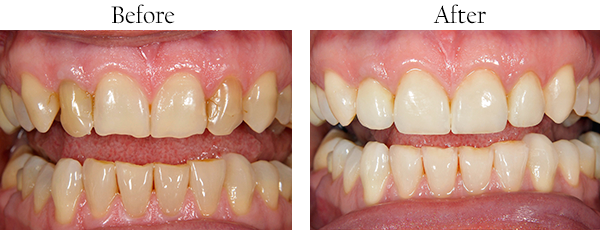 Mission District Before and After Dental Implants