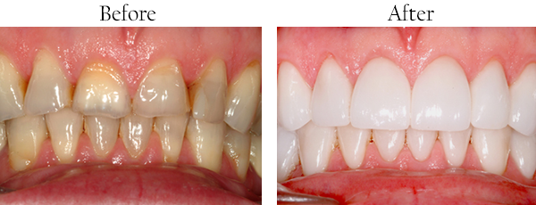 Noe Valley Before and After Teeth Whitening