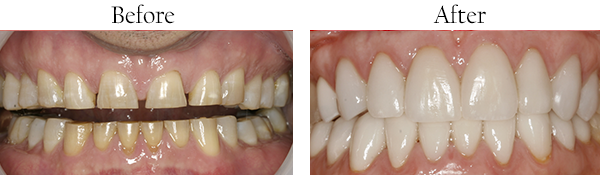 Mission District Before and After Invisalign